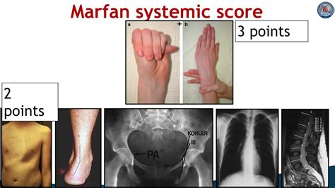 Differences in manifestations of Marfan Syndrome, Ehlers