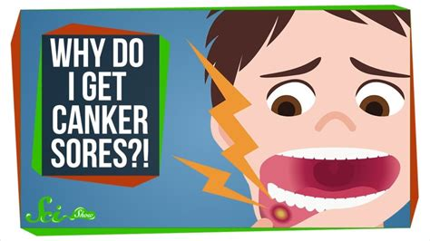 What Should You Know About Canker Sores? - Winchester Dental